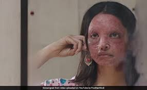 Chhapaak Trailer: Deepika Padukone's Fight For Justice As Malti Will Leave  You Speechless